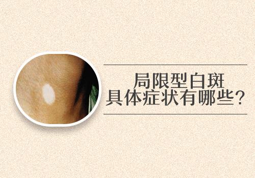孕妇患有白斑病会不会传染宝宝