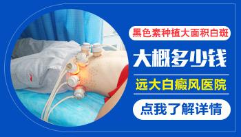 白癜风医院症状