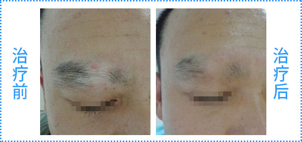 脾多肽注射液联合308nm准分子激光治疗白癜风临床疗效评估