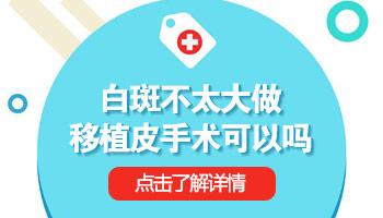 石家庄治疗皮肤白癜风去哪家医院