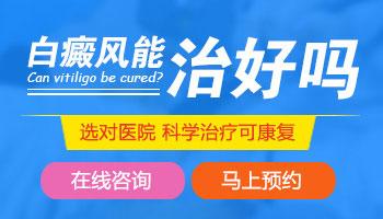 治疗白斑医院儿童治疗白斑如何治愈
