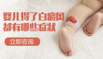 儿童长早期白癜风照308激光康复率真的高吗,如何治疗的